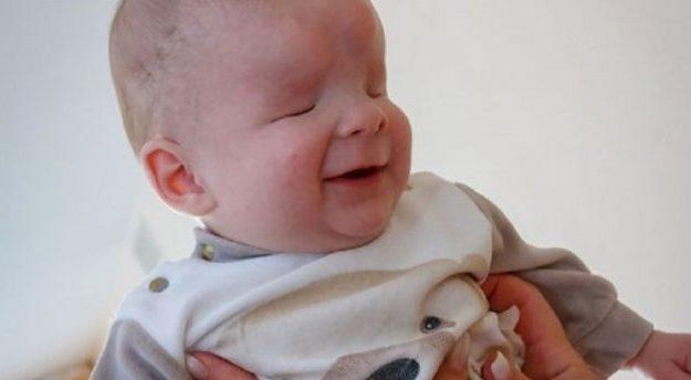 Bebê que nasceu sem olhos é colocado para adoção